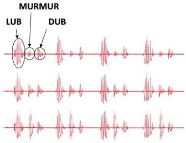 Murmur waveform